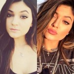 Has Kylie Jenner Had A Lip Injection To Give Her The Perfect Lips?